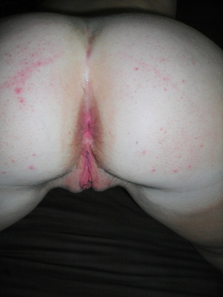 Girl with pimples nude