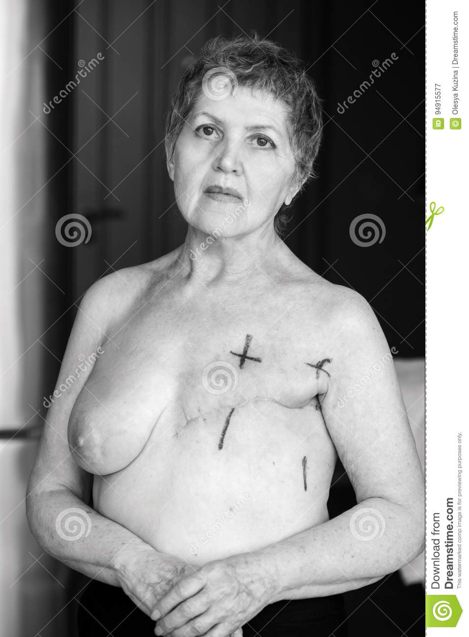 Nude women with cancer